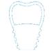 implant-zuba